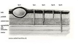 Dermoid sinus (DS)