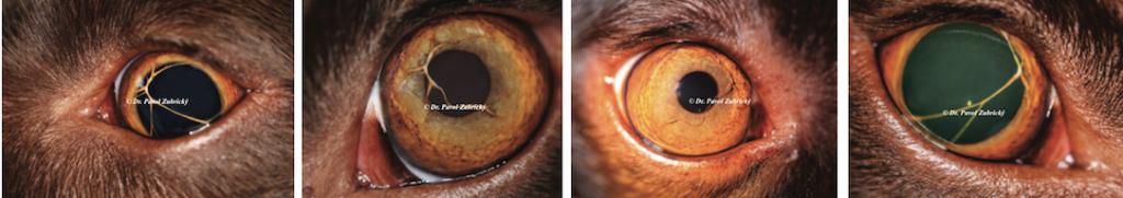 Perzistentná pupilárna membrába
