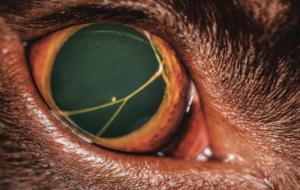Perzistentná pupilárna membrána